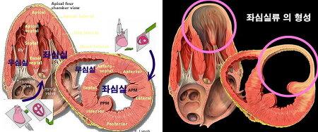 강동경희대병원 심장수술 증례 - 좌심실 재건술 + 관상동맥 우회술 (2) SAVER c CABG , 66세 남자환자 (2)